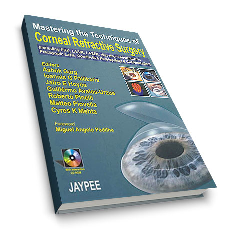 mastering-the-techniques-of-corneal-refractive-surgery