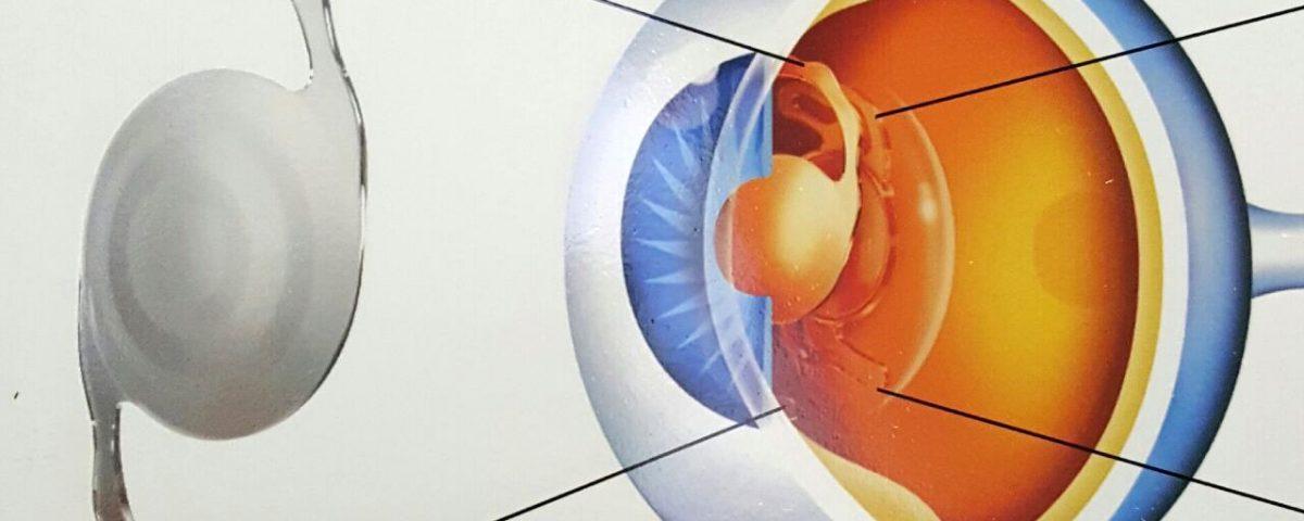 lentes-multifocais-em-cirurgia-de-catarata