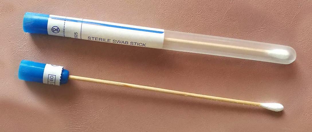 Swabs de Orofaringe